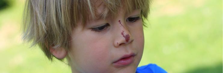Nasenbluten Bei Babys Und Kleinkindern Windelnde
