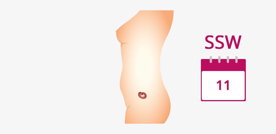 Ssw geschlecht 11 junge ultraschall