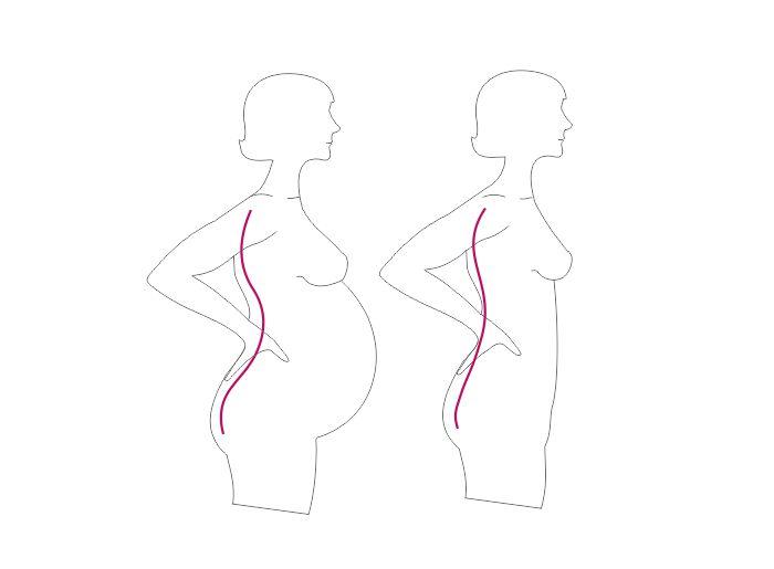 Rückenschmerzen Schwangerschaft